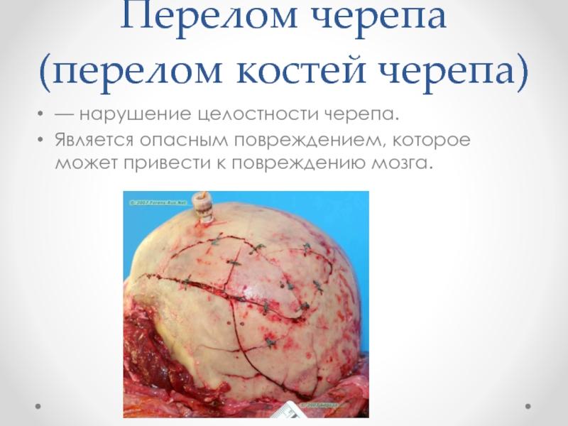 картинки перелома основания черепашки