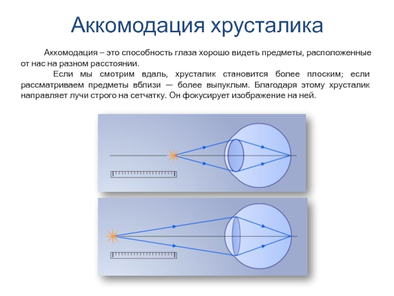 Аккомодация глаза в картинках
