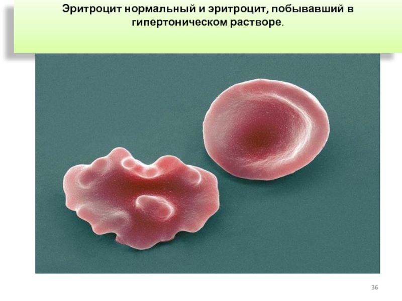 Эритроциты в гипертоническом растворе гемолиз