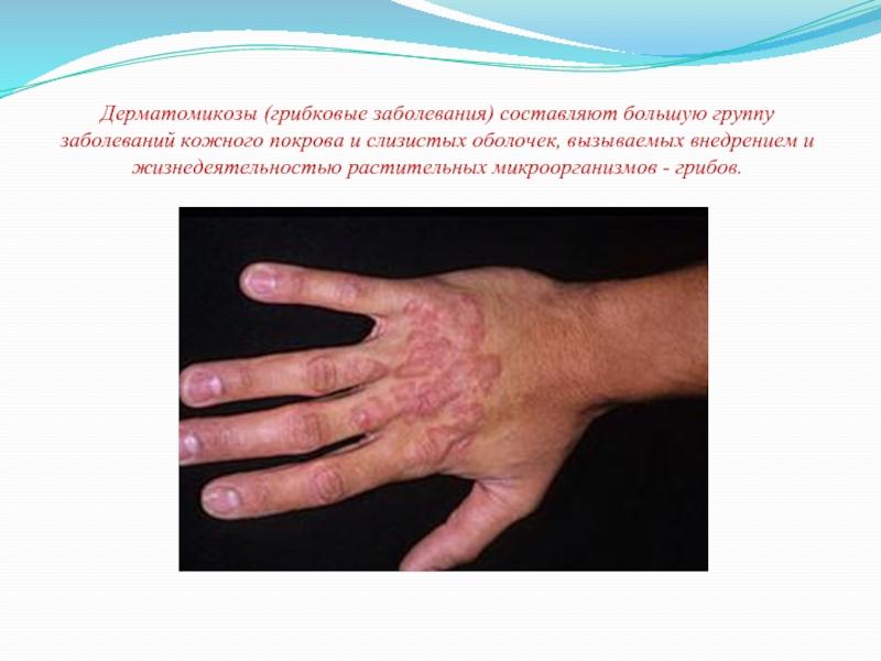 Доклад о заболевание кожи 3815