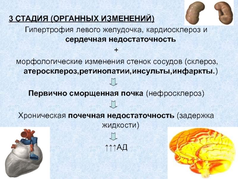 Потеря памяти гипертонический криз — Медико ...
